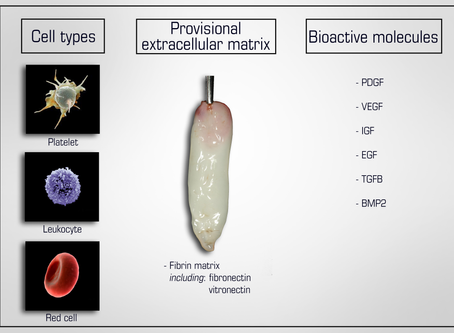 The Evolution of Platelet Rich Fibrin Therapy
