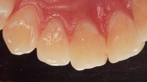 Вид спустя три дня после лечения. Десна в норме. Пломбы абсолютно незаметны даже с небной стороны, где их увидеть может только стоматолог.