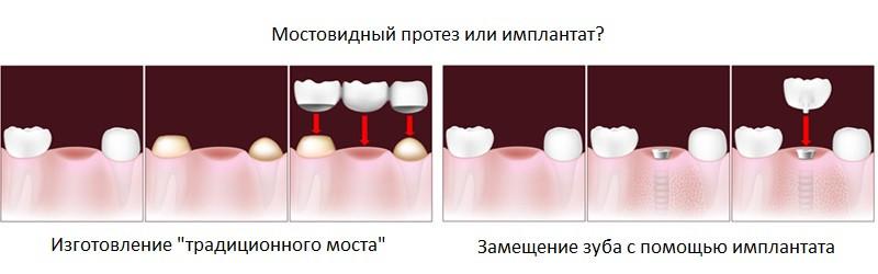 Разница между установкой моста и импланта