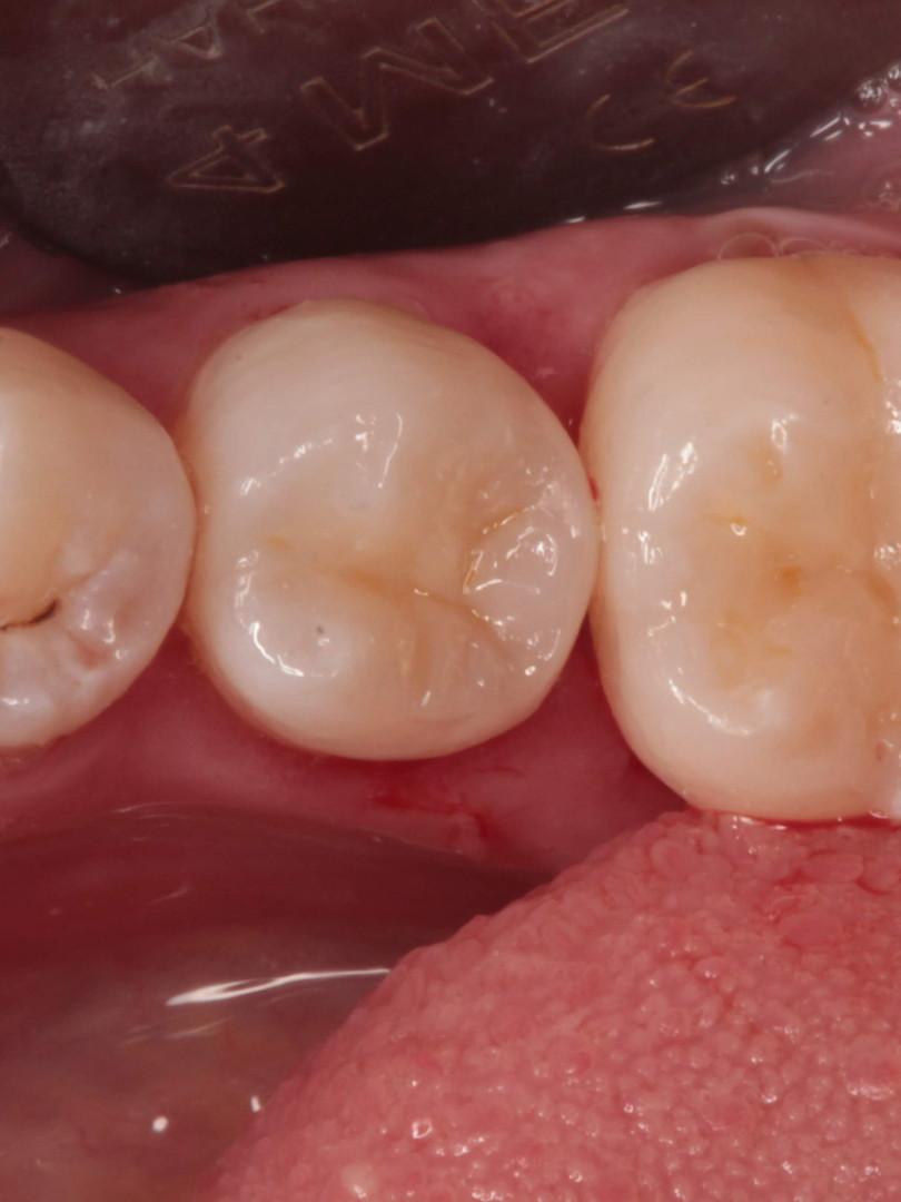 7. Оба зуба восстановлены с учетом анатомии и цвета.