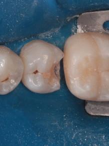 6. Зуб 36 восстановлен.