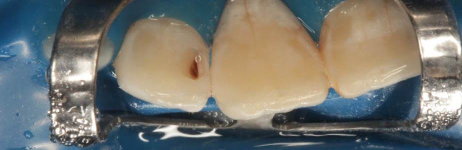 Зуб 11 полностью восстановлен. Частичное препарирование соседнего зуба 12.