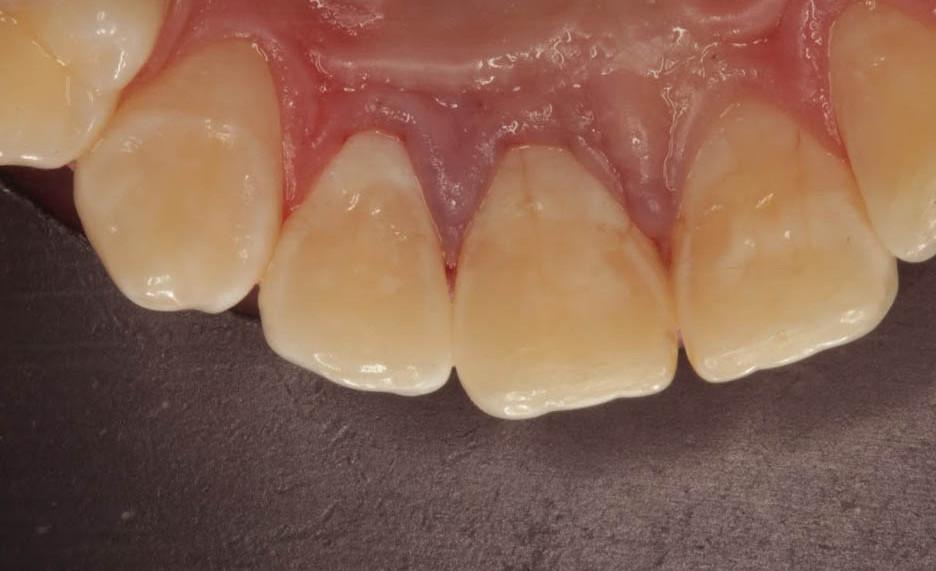 Восстановлены оба зуба. Фото сразу по окончании работы. Десна несколько синюшна от анестезии и коффердама.