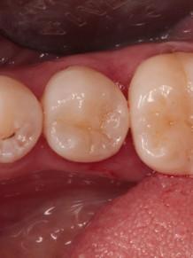 8. Оба зуба восстановлены с учетом анатомии и цвета.