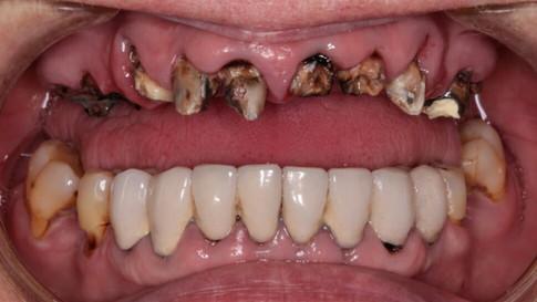 Исходная ситуация. Верхние зубы сильно разрушены.