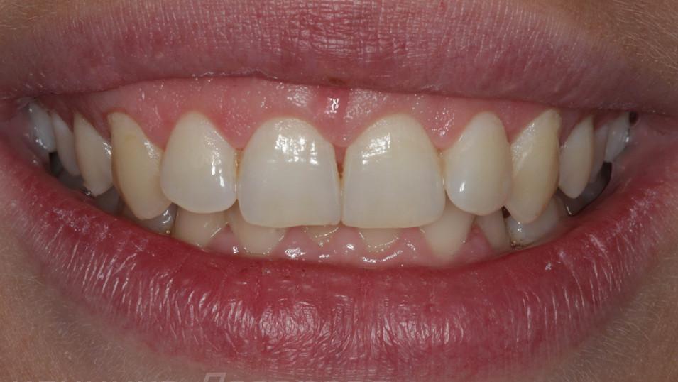 Ситуация через неделю. Десневой край при улыбке визуализируется значительно меньше. Пропорции зубов стали более гармоничными.
