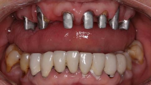 Зубы восстановлены культевыми вкладками.