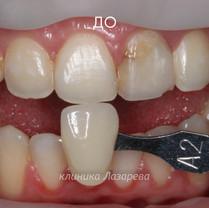 2 Восстановление переднего зуба виниром