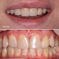 3 ПОСЛЕ - восстановление зуба керамической коронкой