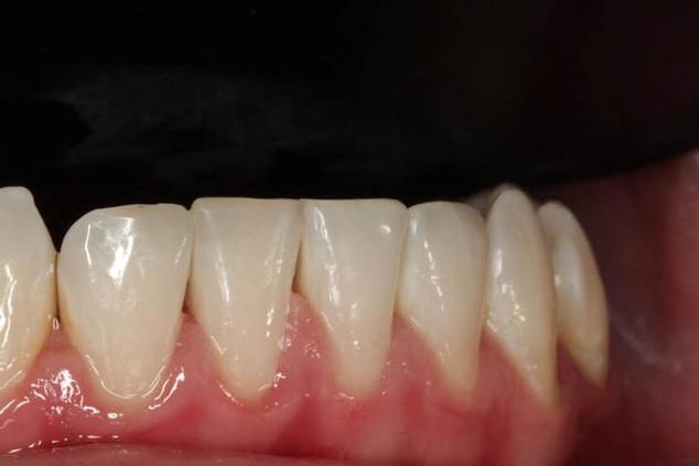"""Ситуация """"после"""". Вид сразу по окончании работы. Режущие края зубов восстановлены. Межзубные сосочки были отжаты коффердамом. Они восстанавливаются за пару часов."""