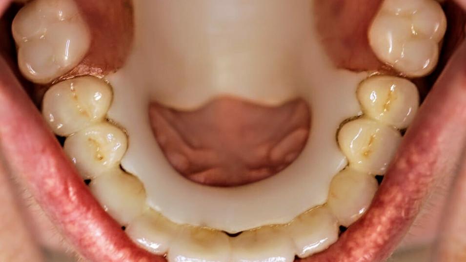 Изготовлен ацеталевый съемный протез на верхнюю челюсть.