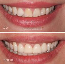 1 Реставрация улыбки винирами E-max