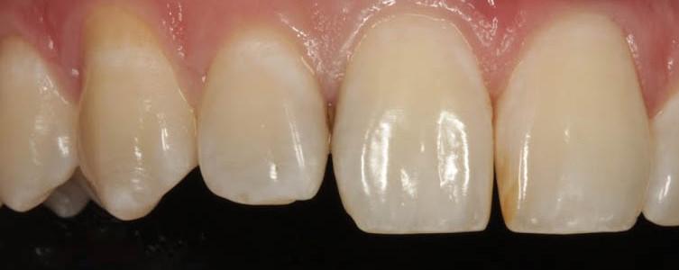 Затемнение между зубами говорит о наличии кариеса.