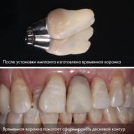 4 ВОССТАНОВЛЕНИЕ ПЕРЕДНЕГО ЗУБА: удаление ➡️ имплант ➡️ коронка