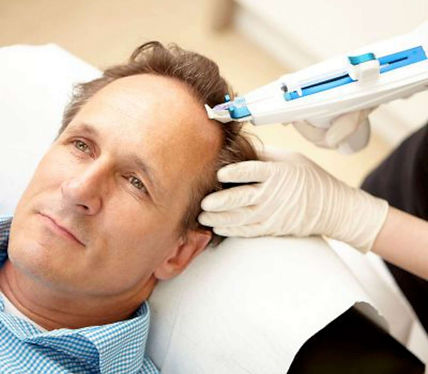 greffede cheveu belgique avec mésothérapie