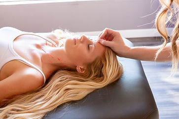 acupuncture-services.jpg