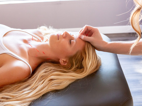 Can Acupuncture Help Headaches and Migraines?