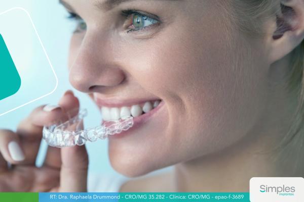 como-funciona-o-clareamento-dental-caseiro