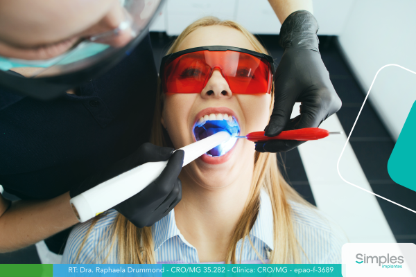 clareamento-dental-a-laser-conheca-seus-beneficios