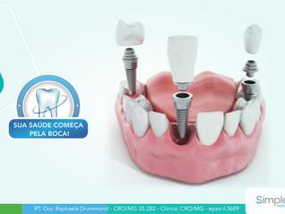O que é um implante dentário? Entenda o que é e seus benefícios