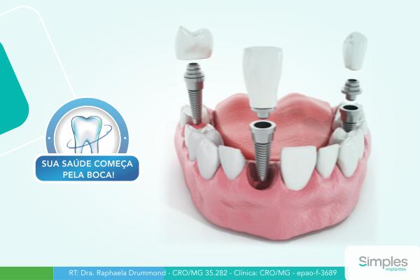 o-que-e-implante-dentario