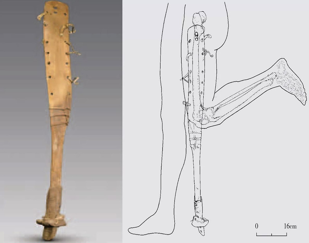 drawing of  how a stump wooden leg would be inserted for use