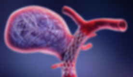 IM-006907-02-regular_stent_coil_giant_aneurysm_RGB24-e1515786374852_edited.jpg