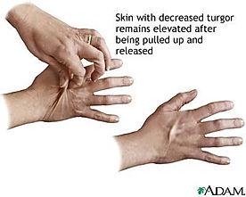 skin-turgor.jpg