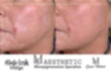 Vitiligo tetoválás női arc 2.jpeg