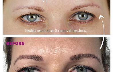 eyebrow-4-permanent-make-up-remover-pigm