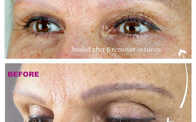 eyebrow-5-permanent-make-up-remover-pigm