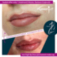 lips-4-permanent-make-up-remover-pigment