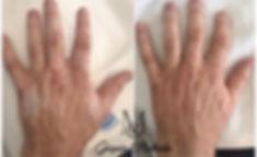 Helpink_kézfej_vitiligo.jpg