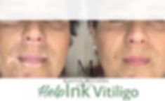 Vitiligo%20tetov%C3%A1l%C3%A1s%20n%C5%91