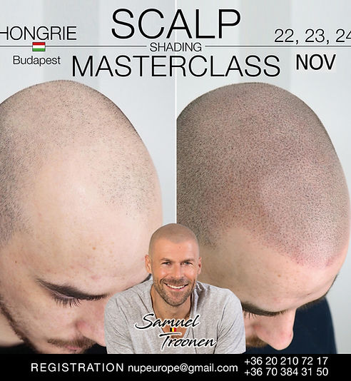 Scalp micropigmantation Samuel Troonen 3