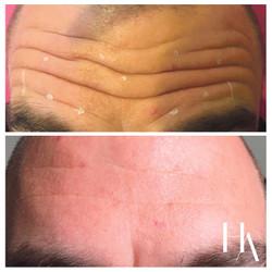 Fine Line and Wrinkle Treatments