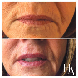 Lip Enhancement - Before and After