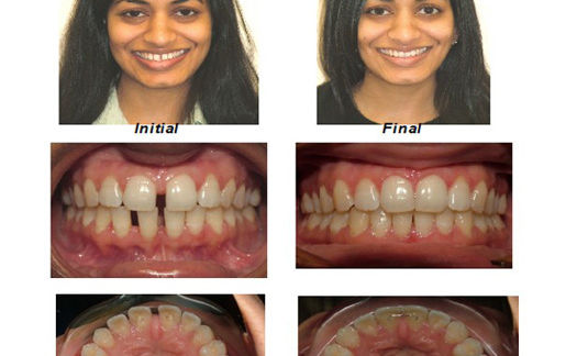 Orthodontics in Dentist in NYC dentistbrooklyn.com Advanced Dental Care Advanced Dental Care of NYC 718-624-1970