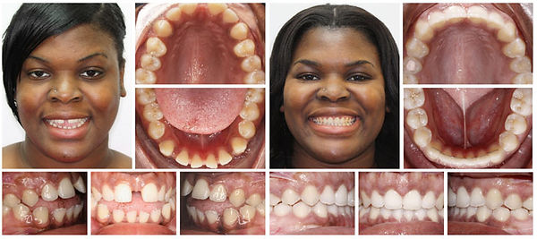 Orthodontics in Dentist in Brooklyn dentistbrooklyn.com Advanced Dental Care Advanced Dental Care of NYC 718-624-1970