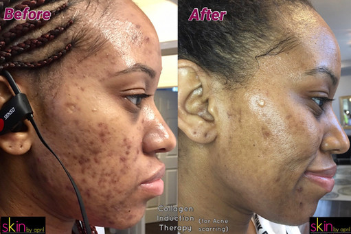 Acne Clinic Results