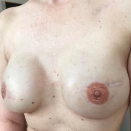 Bluebird Ink Breast Cancer Tattoos 007 1