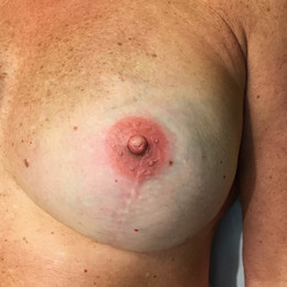 Bluebird Ink Breast Cancer Tattoos 001 1