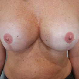 Bluebird Ink Breast Cancer Tattoos 002 1
