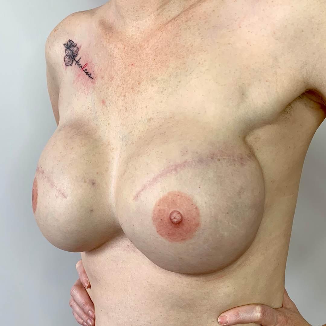 Bluebird Ink Breast Cancer Tattoos 006 1
