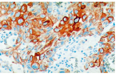 Cytokeratin