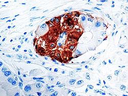 Actin-alpha-Smooth Muscle_1A4.jpg
