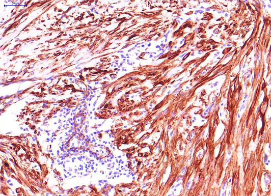 Actin (smooth muscle specific)