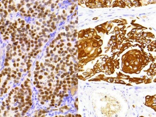 HISTOLS-TTF-1/Cytokeratin 5