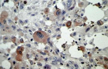 Tumor Necrosis Factor (TNF) -alpha