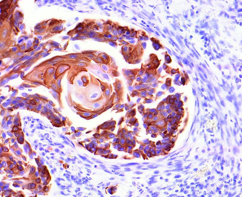 Cytokeratin 5